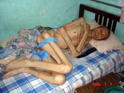 Shizhimin, a victim of torture, which is widely used in more than 300 forced labor camps located all over China.